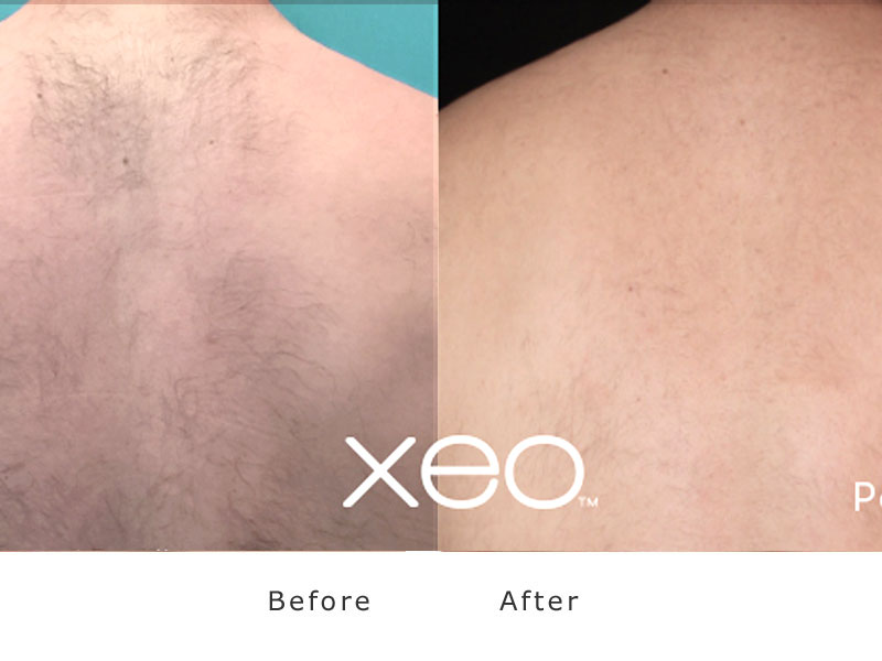 removal of man back hair Xeo Yad dark skin