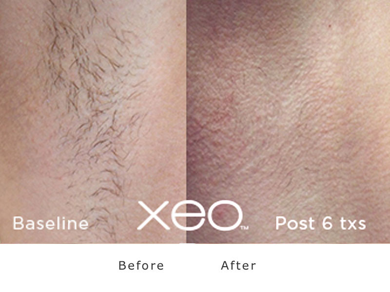 cutera XEO laser hair removal face before and after
