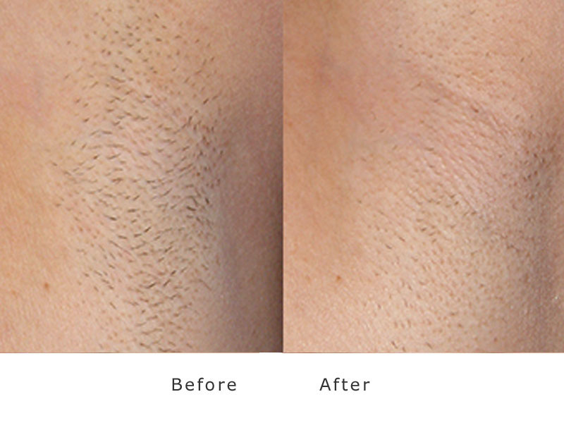 permanent hair removal by XEO laser at my face asthetics clinic