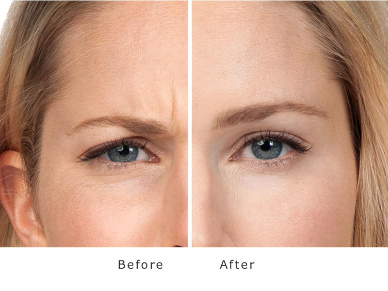 Botox Bolton Botox Treatments At My Face Aesthetics Clinic