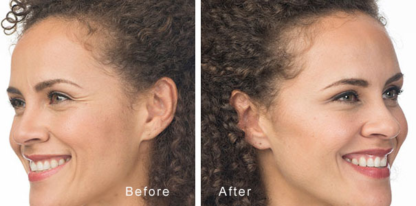 using dermil fillers to face below the eye line - cheeks jowls