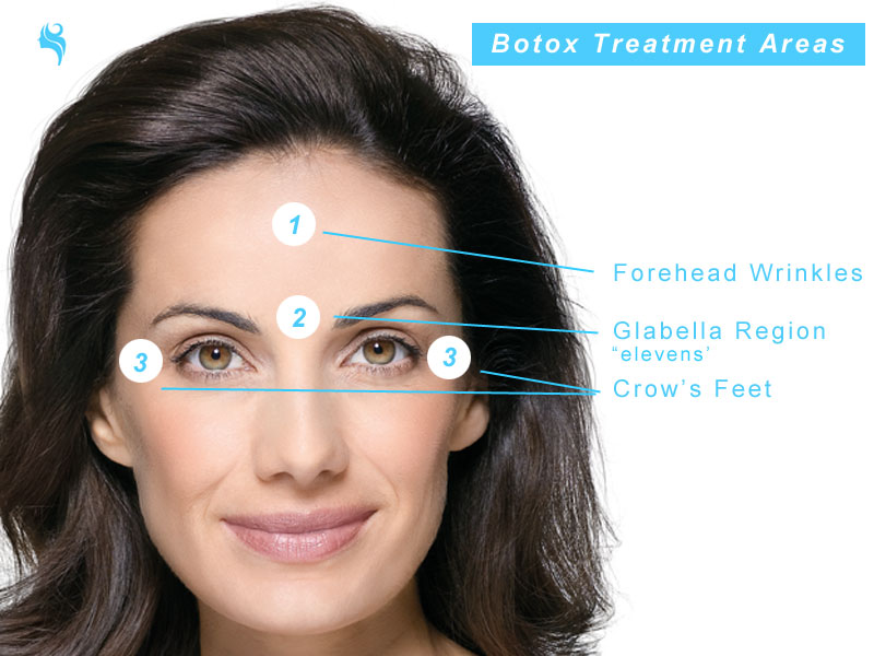 dermal fillers treatment areas