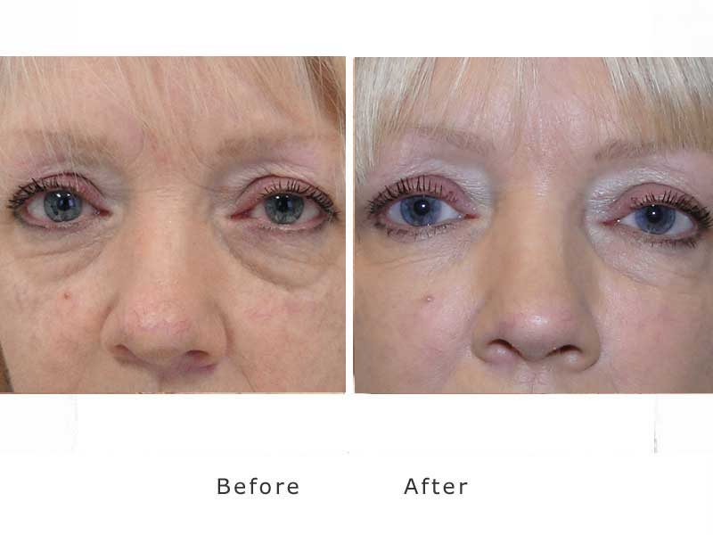 restoring volume to dark hollow eyes using dermal fillers