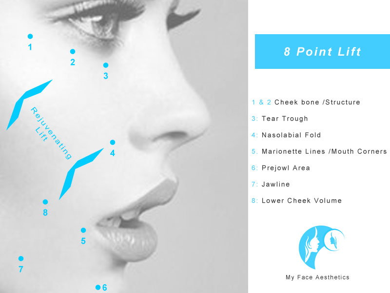 8 point face lift treatment areas