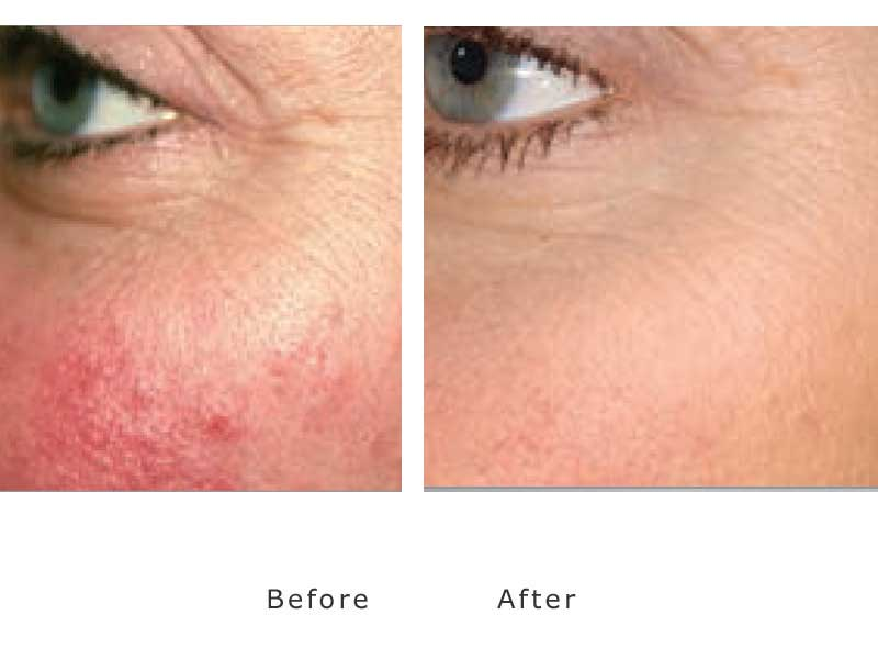 diffuse redness to cheaks treated by cutera genesis lasers in our clinic