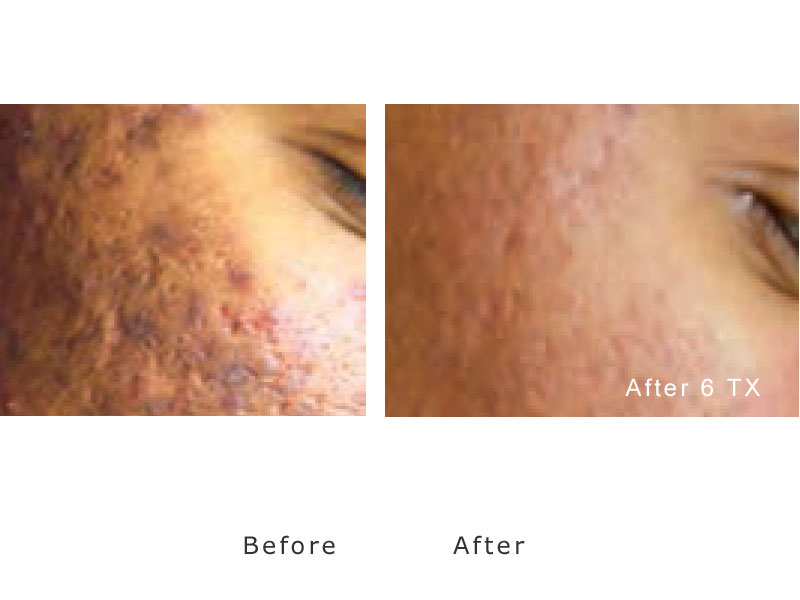 acne-laser-treatment